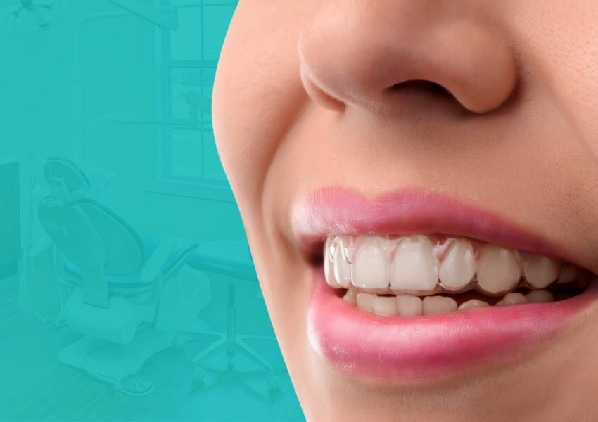 invisalign dentist beaverton